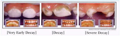 Dental Decay Stages